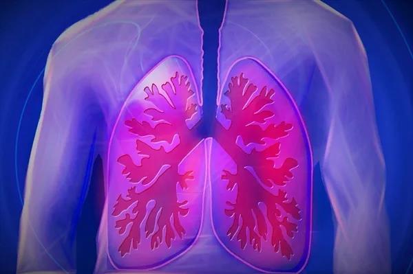 新冠肺炎治疗花多少钱,没有医保怎么办?